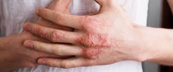 الأكزيما التهاب جلدى