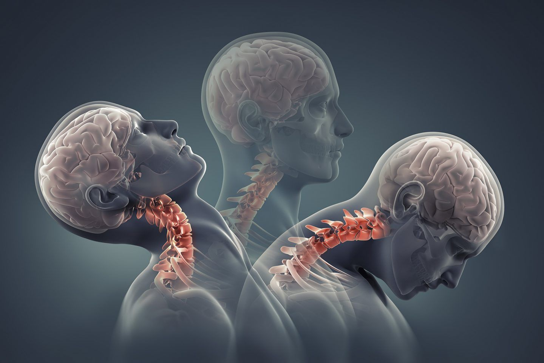 ماهو الارتجاج الدماغي خلال لعبة كرة القدم