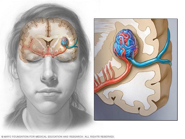التشوهات الوريدية داخل الجمجمة