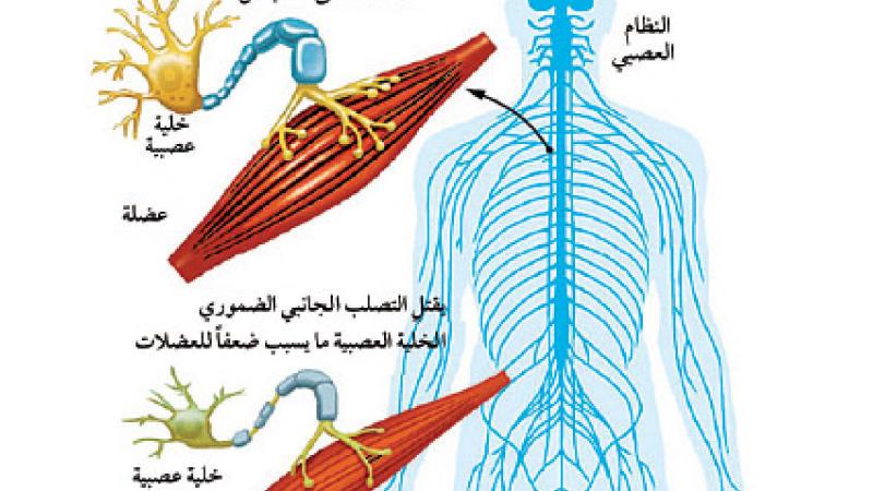 ماهو التصلب الجانبي الضموري (ALS)