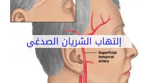 ماهو التهاب الشريان الصدغي