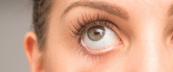 ماهو جفاف العيون