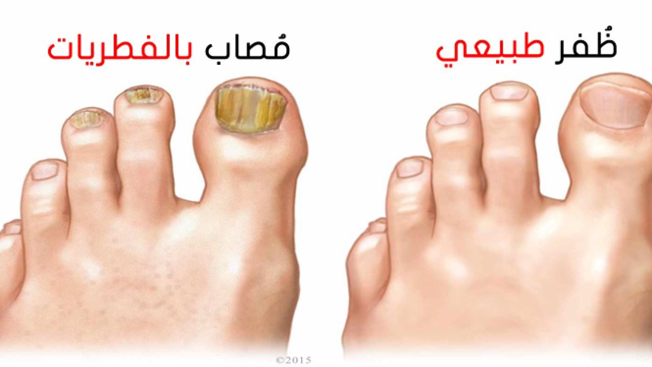 علاج فطريات القدم, ماهو علاج فطريات القدم, اعراض علاج فطريات القدم