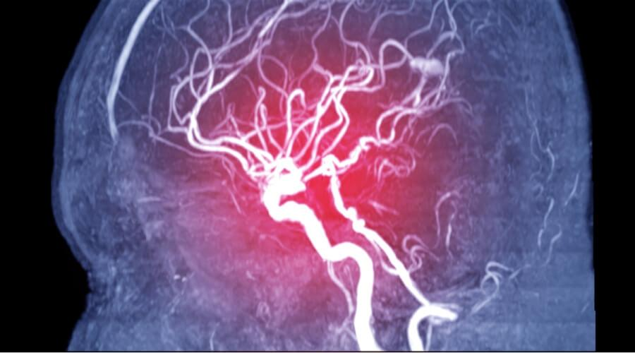 الآثار الجانبية لقسطرة المخ