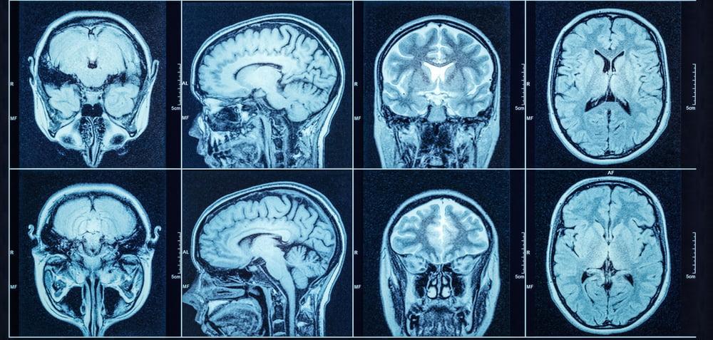 الأورام وجراحة قاعدة الجمجمة, ماهى الأورام وجراحة قاعدة الجمجمة