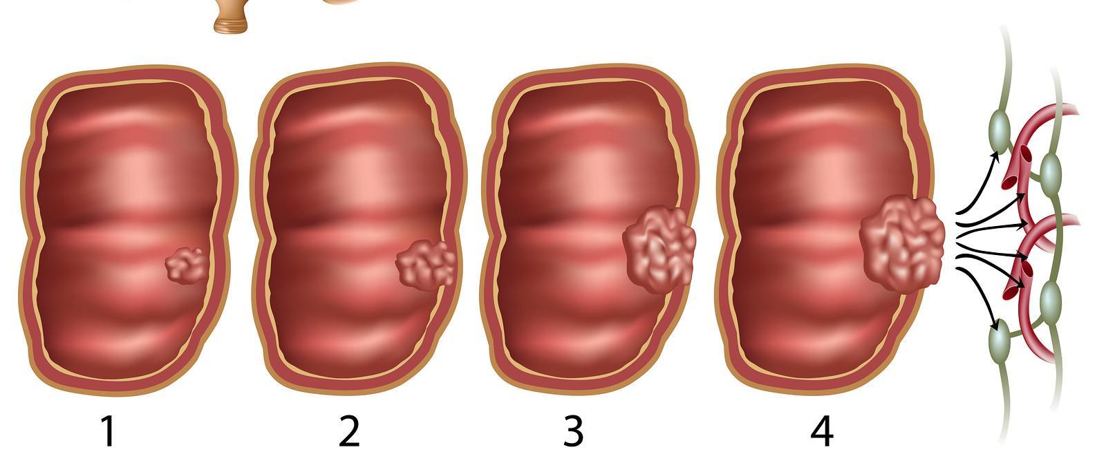 مراحل سرطان القولون
