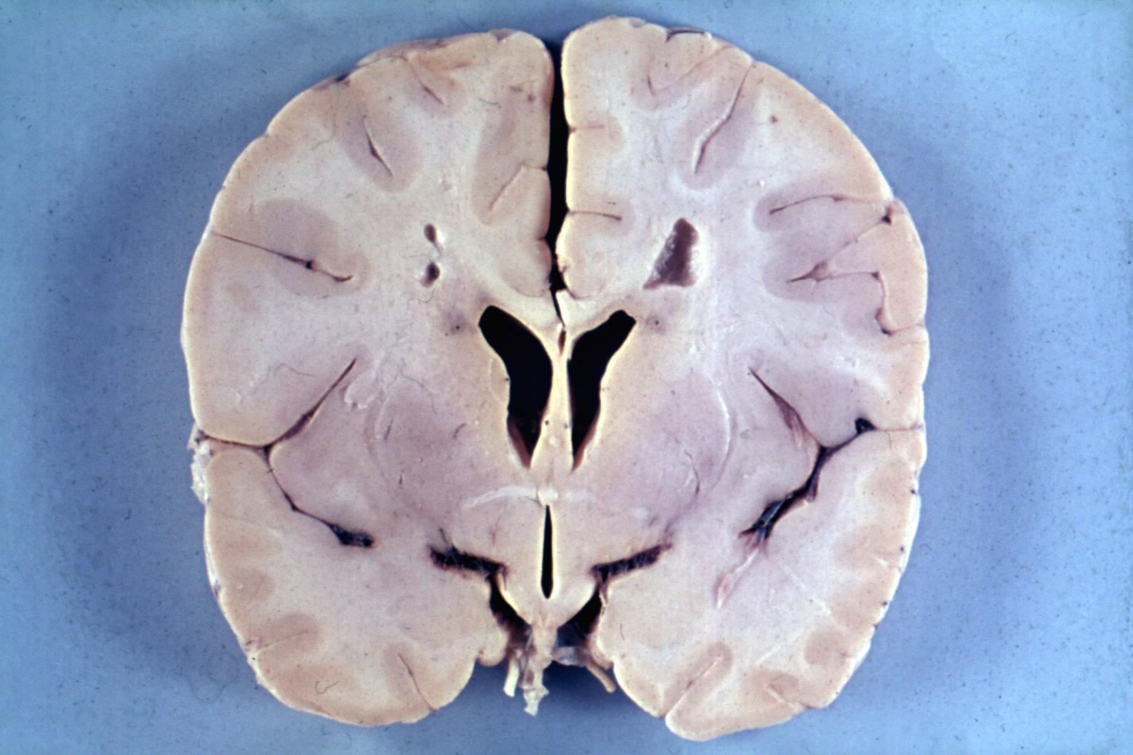 مرض الإسكندر, ماهو مرض الإسكندر, اعراض مرض الإسكندر