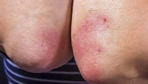 How to prevent psoriasis from spreading