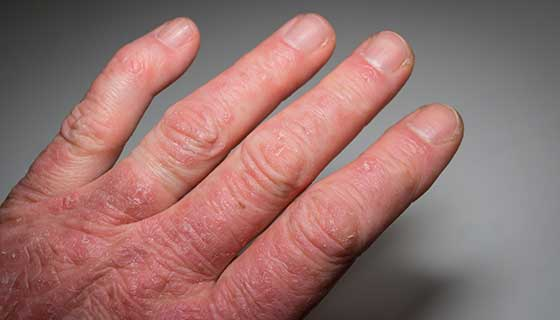 What are the complications of psoriatic arthritis