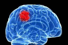 Brain tumor complications