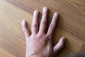 Finger joint swelling that is not arthritis
