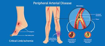critical limb ischemia